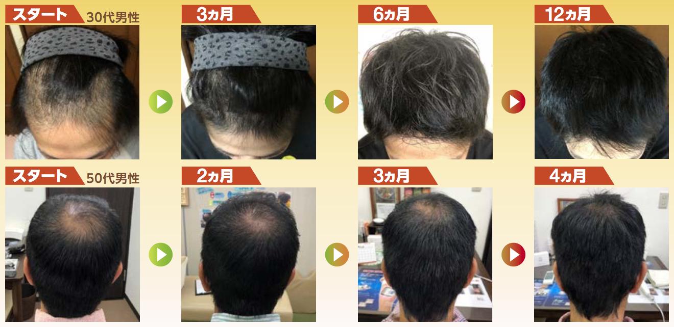 Grow Hairの例