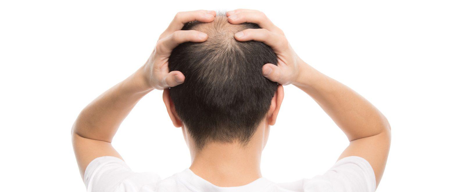 薄毛治療の本当の話